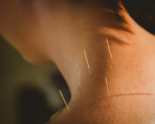 woman getting acupuncture on table